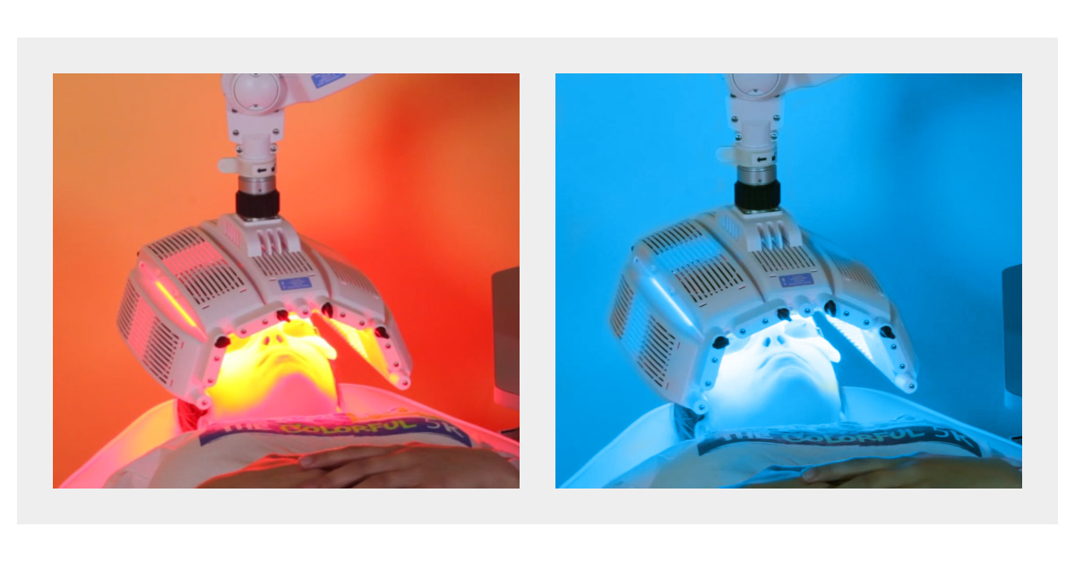 Does Photodynamic Therapy Pdt Work For Acne Levulan