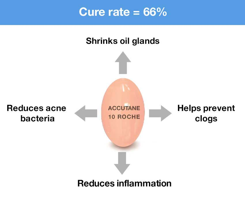 How Accutane (isotretinoin) Works