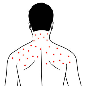 Body and neck acne