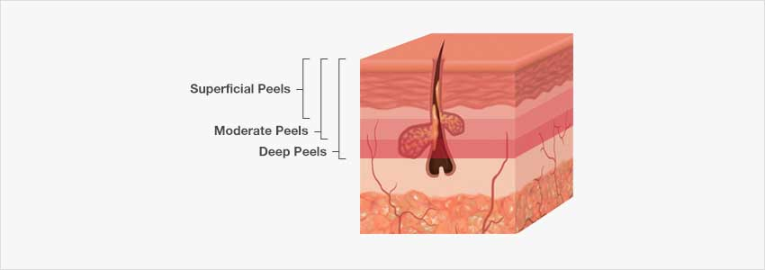 superficial, moderate and deep chemical peels
