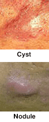 acne cyst and nodule
