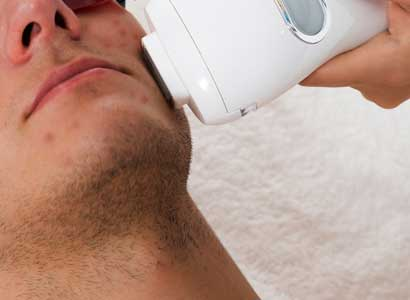 laser for hyperpigmentation