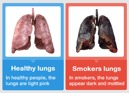 smokers-lungs.png
