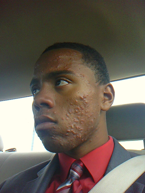 Really Bad Acne... Really Black People